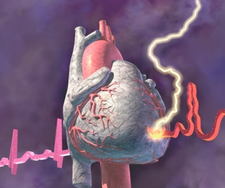 Heart Patients With ICD's More Likely To Face Sexual Dysfunction